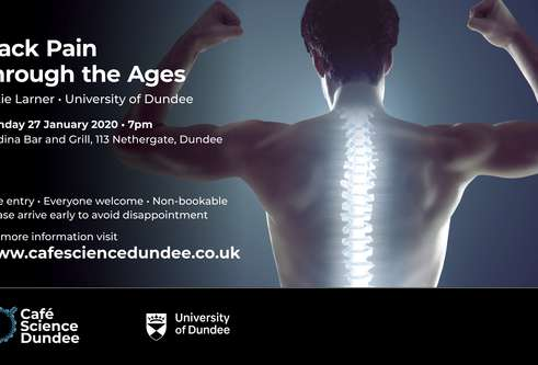 Thumbnail for story: 'Back Pain through the Ages' – Café Science on 27 January